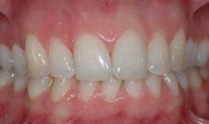 gengive infiammate rimedi dentista salerno