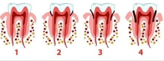 piorrea sintomi trattamenti paradontologia studio dentistico melucci salerno